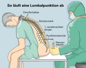 Lumbalpunktion